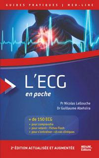 L'ECG en poche. 2e édition actualisée
