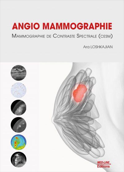 Angio Mammographie